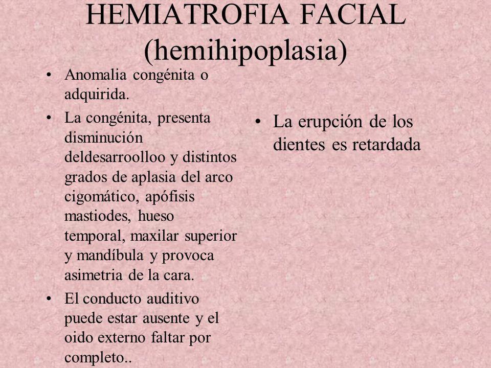 HEMIATROFIA FACIAL (hemihipoplasia)