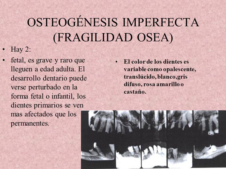 OSTEOGÉNESIS IMPERFECTA (FRAGILIDAD OSEA)