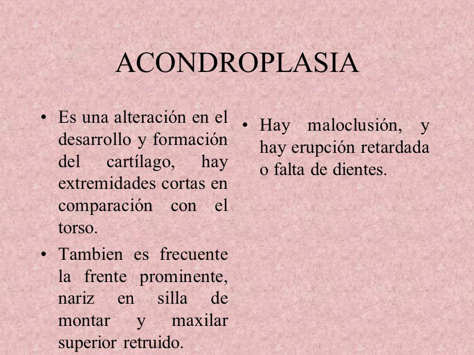 ACONDROPLASIA Es una alteración en el desarrollo y formación del cartílago, hay extremidades cortas en comparación con el torso.