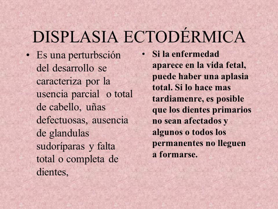 DISPLASIA ECTODÉRMICA