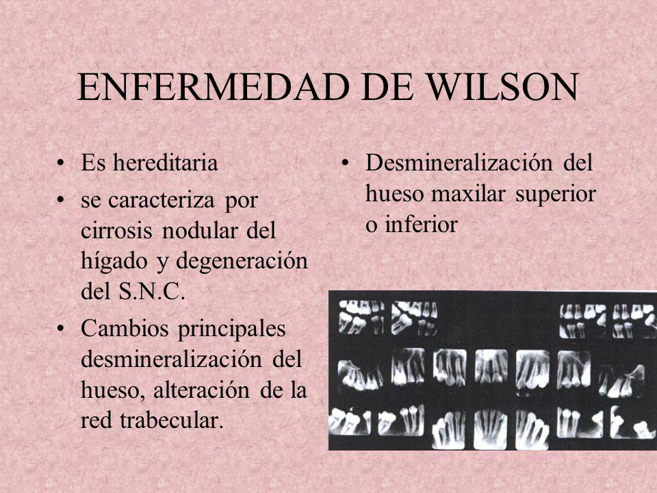 ENFERMEDAD DE WILSON Es hereditaria