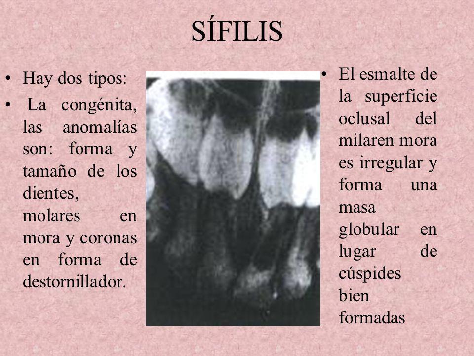 SÍFILIS El esmalte de la superficie oclusal del milaren mora es irregular y forma una masa globular en lugar de cúspides bien formadas.