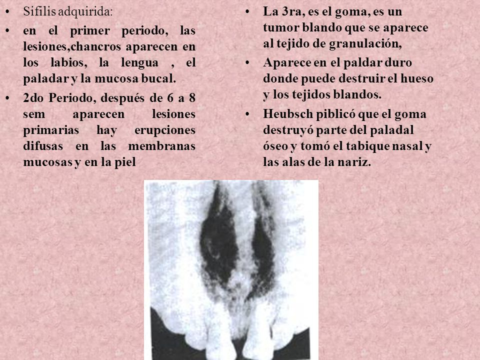 Sifilis adquirida: en el primer periodo, las lesiones,chancros aparecen en los labios, la lengua , el paladar y la mucosa bucal.