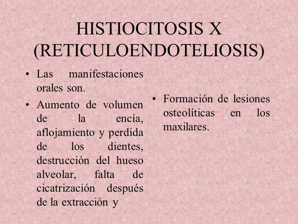 HISTIOCITOSIS X (RETICULOENDOTELIOSIS)