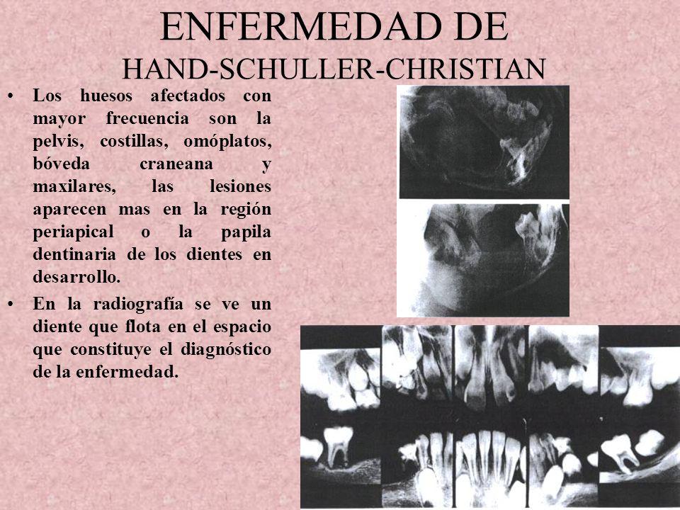ENFERMEDAD DE HAND-SCHULLER-CHRISTIAN