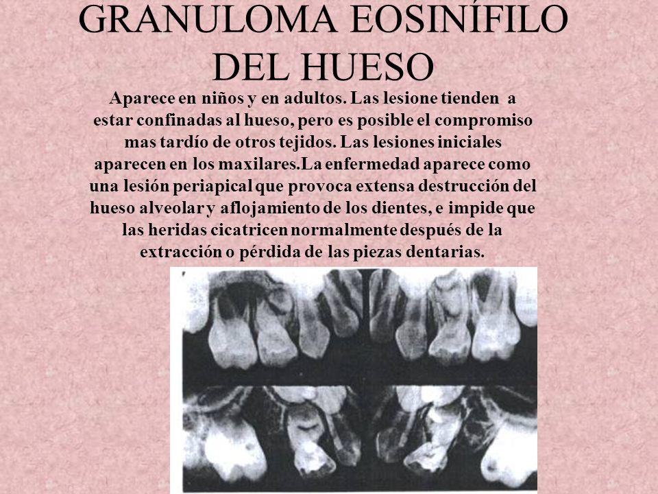 GRANULOMA EOSINÍFILO DEL HUESO