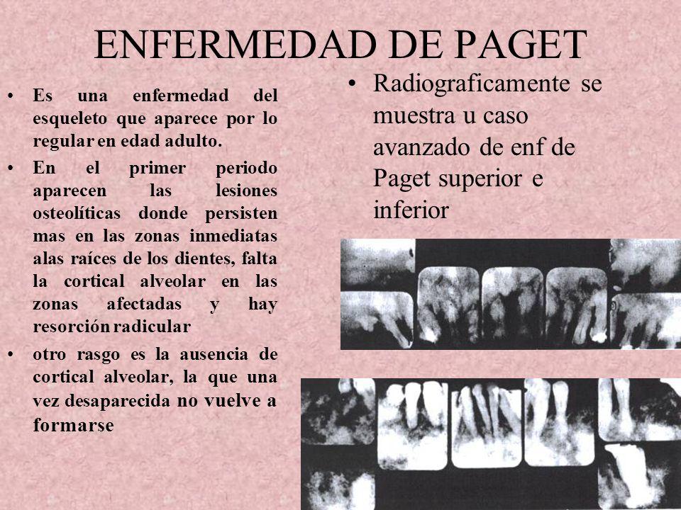 ENFERMEDAD DE PAGET Radiograficamente se muestra u caso avanzado de enf de Paget superior e inferior.
