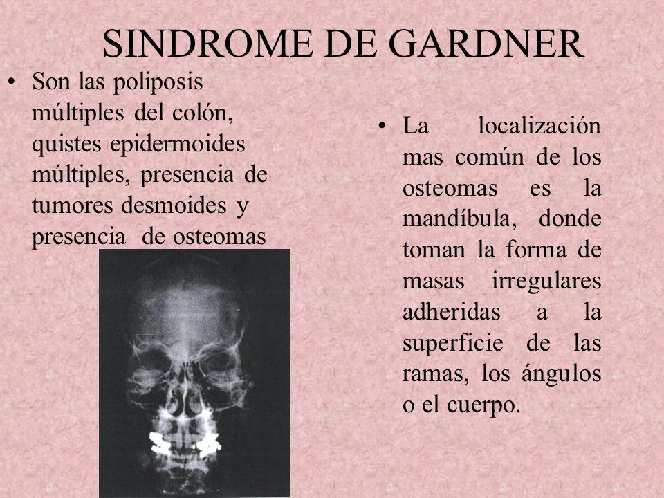 SINDROME DE GARDNER Son las poliposis múltiples del colón, quistes epidermoides múltiples, presencia de tumores desmoides y presencia de osteomas.