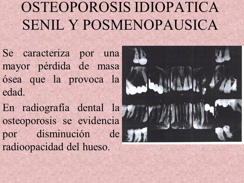 OSTEOPOROSIS IDIOPATICA SENIL Y POSMENOPAUSICA