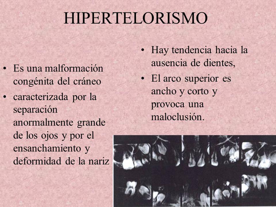 HIPERTELORISMO Hay tendencia hacia la ausencia de dientes,