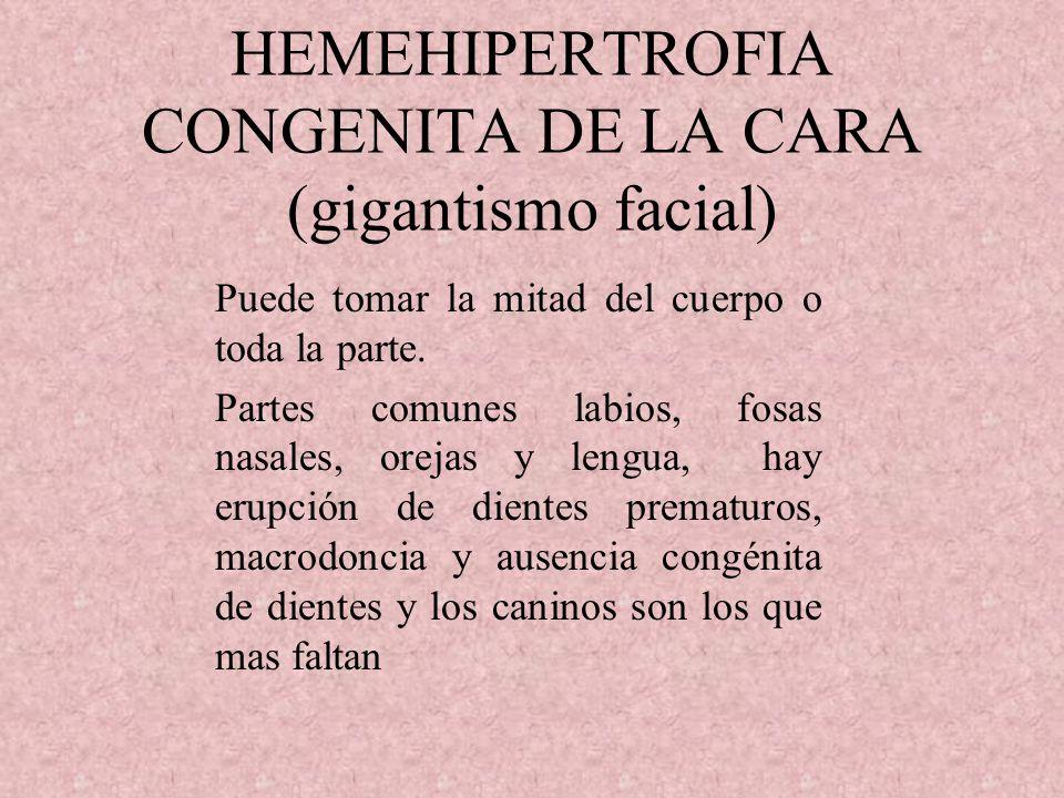 HEMEHIPERTROFIA CONGENITA DE LA CARA (gigantismo facial)