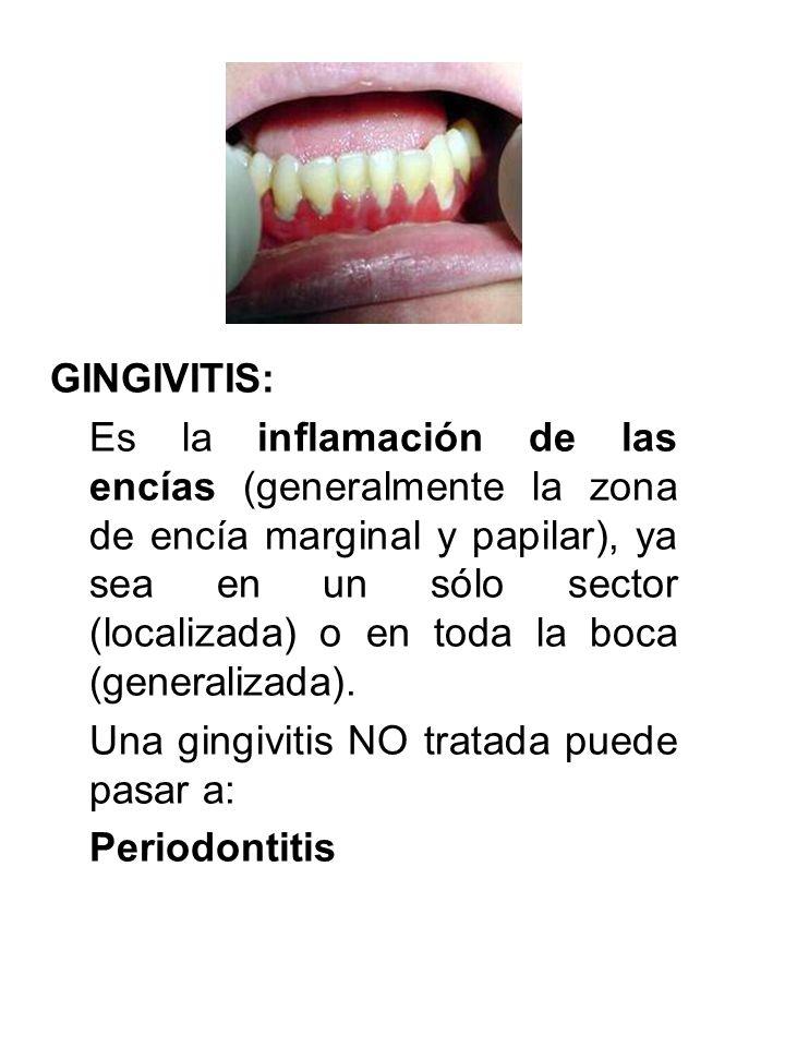 GINGIVITIS: