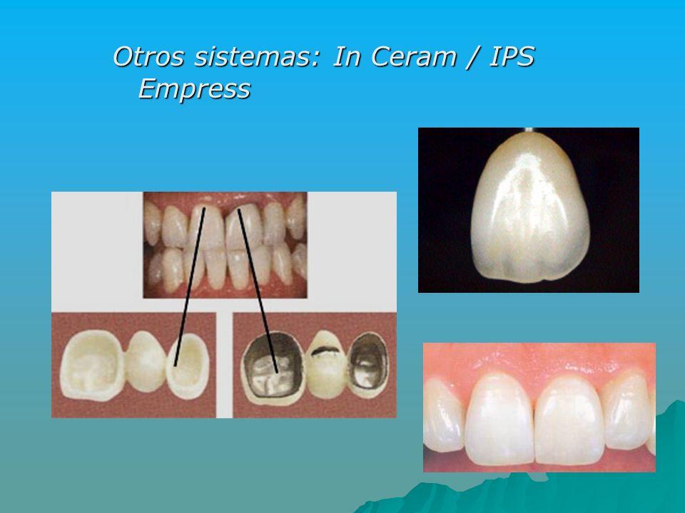 Otros sistemas: In Ceram / IPS Empress