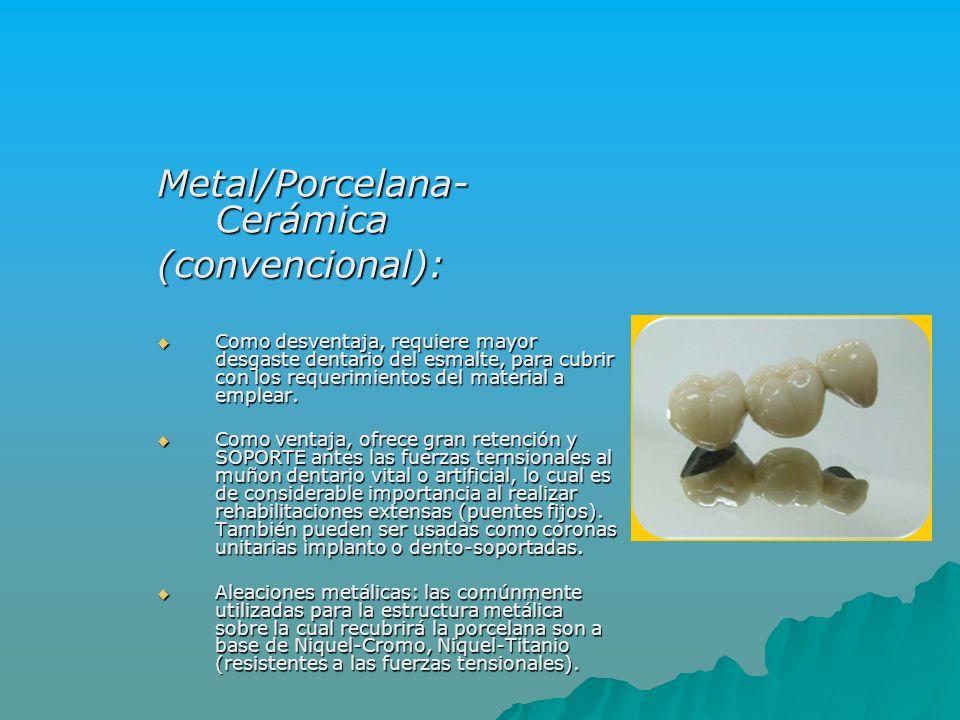 Metal/Porcelana-Cerámica (convencional):
