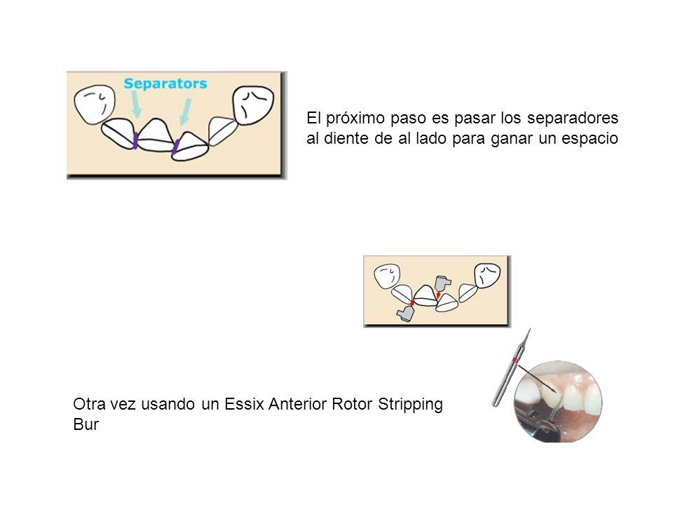 El próximo paso es pasar los separadores al diente de al lado para ganar un espacio