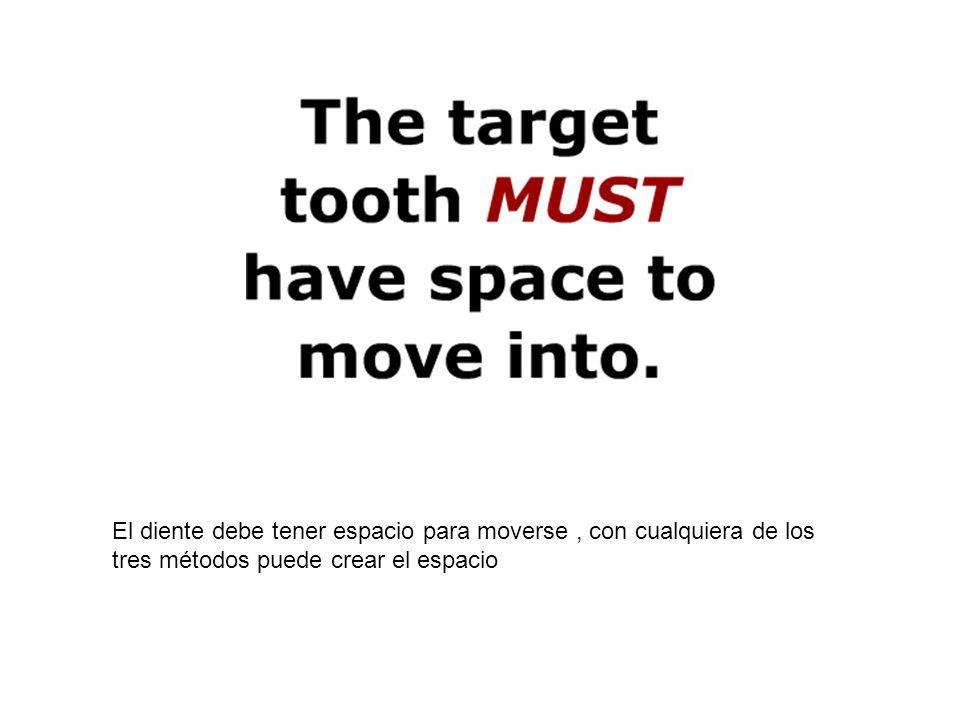 El diente debe tener espacio para moverse , con cualquiera de los tres métodos puede crear el espacio