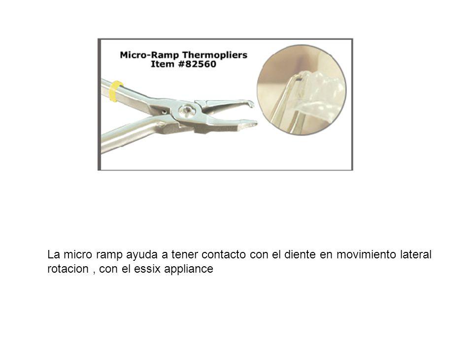 La micro ramp ayuda a tener contacto con el diente en movimiento lateral rotacion , con el essix appliance