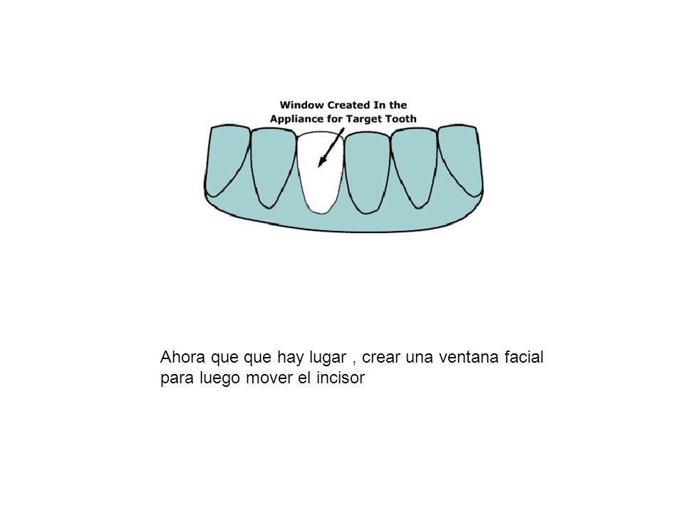Ahora que que hay lugar , crear una ventana facial para luego mover el incisor