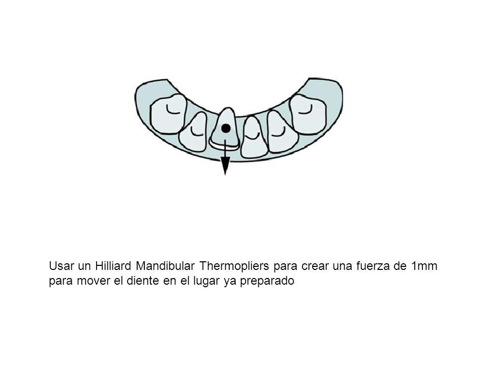 Usar un Hilliard Mandibular Thermopliers para crear una fuerza de 1mm para mover el diente en el lugar ya preparado