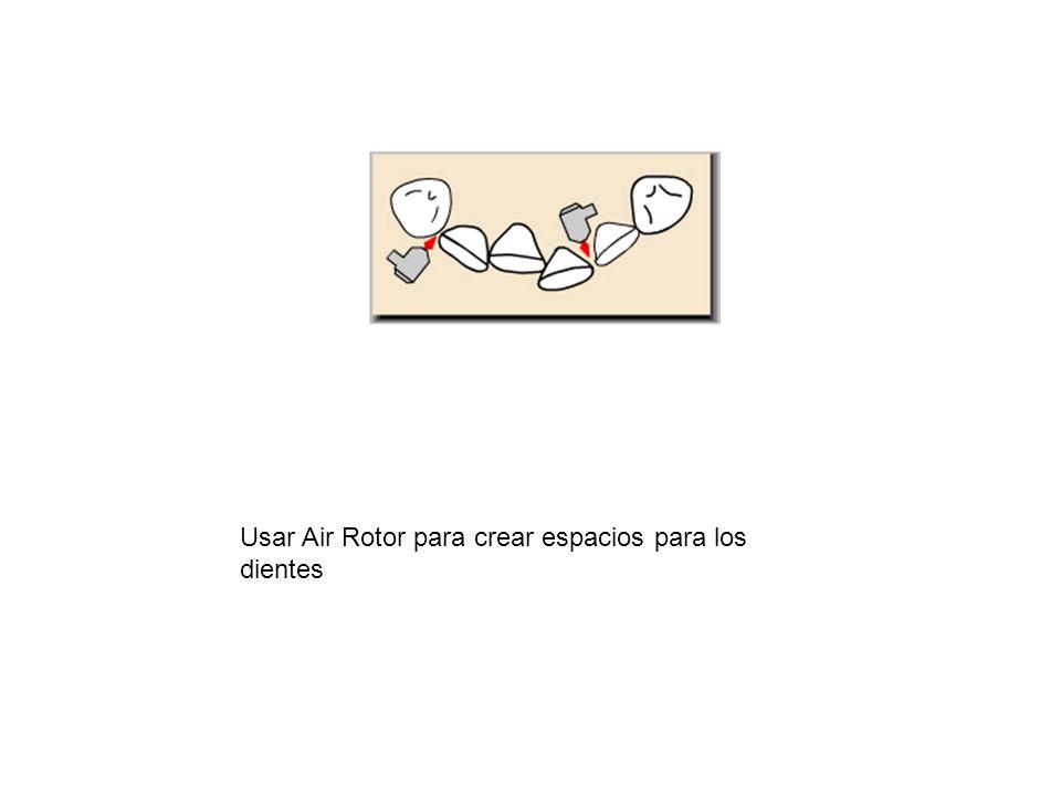 Usar Air Rotor para crear espacios para los dientes