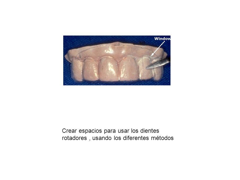 Crear espacios para usar los dientes rotadores , usando los diferentes métodos