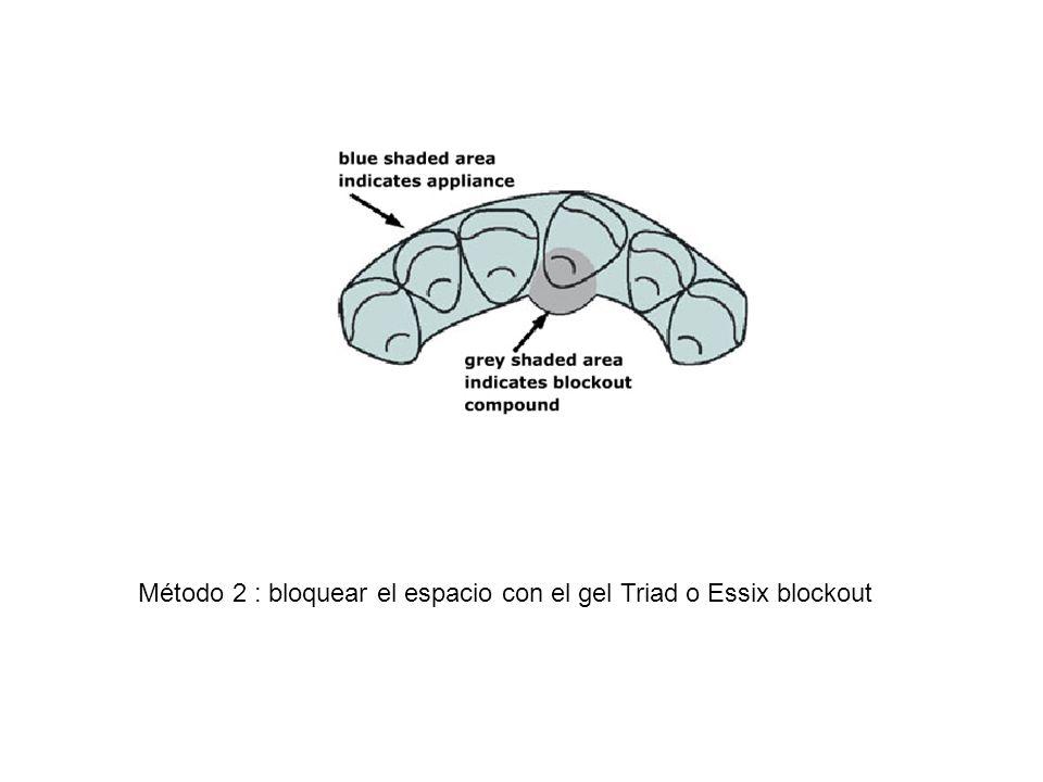 Método 2 : bloquear el espacio con el gel Triad o Essix blockout