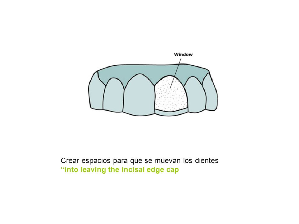 Crear espacios para que se muevan los dientes into leaving the incisal edge cap