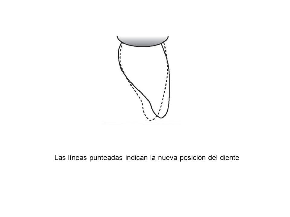 Las líneas punteadas indican la nueva posición del diente