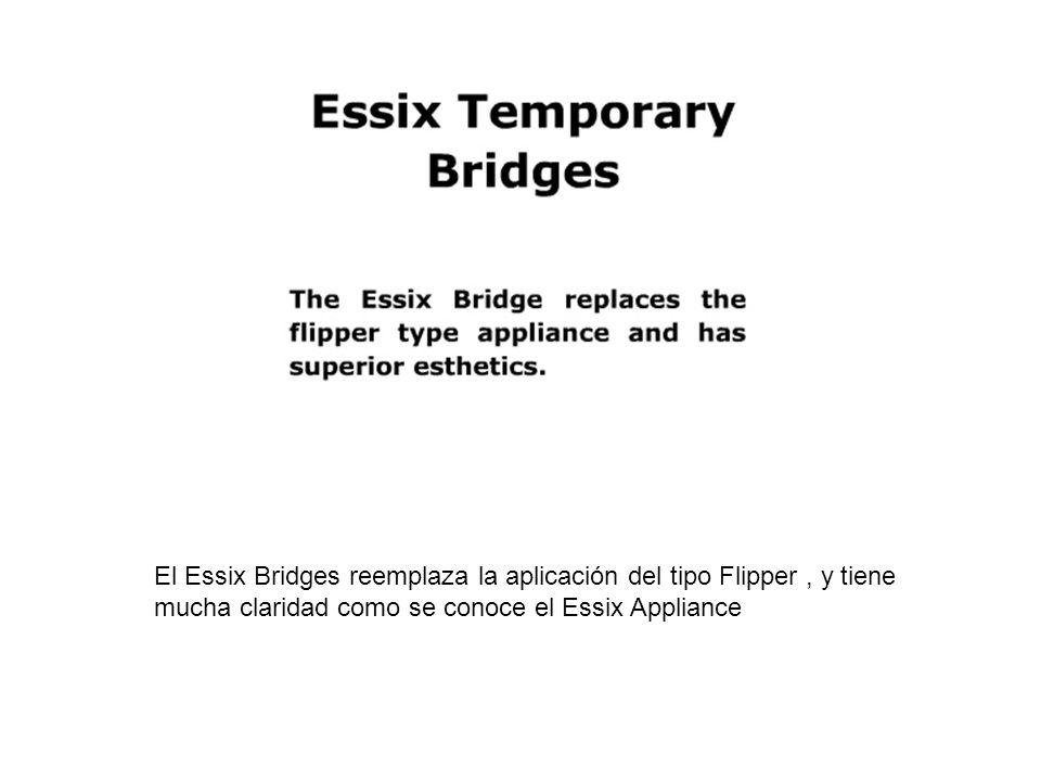 El Essix Bridges reemplaza la aplicación del tipo Flipper , y tiene mucha claridad como se conoce el Essix Appliance