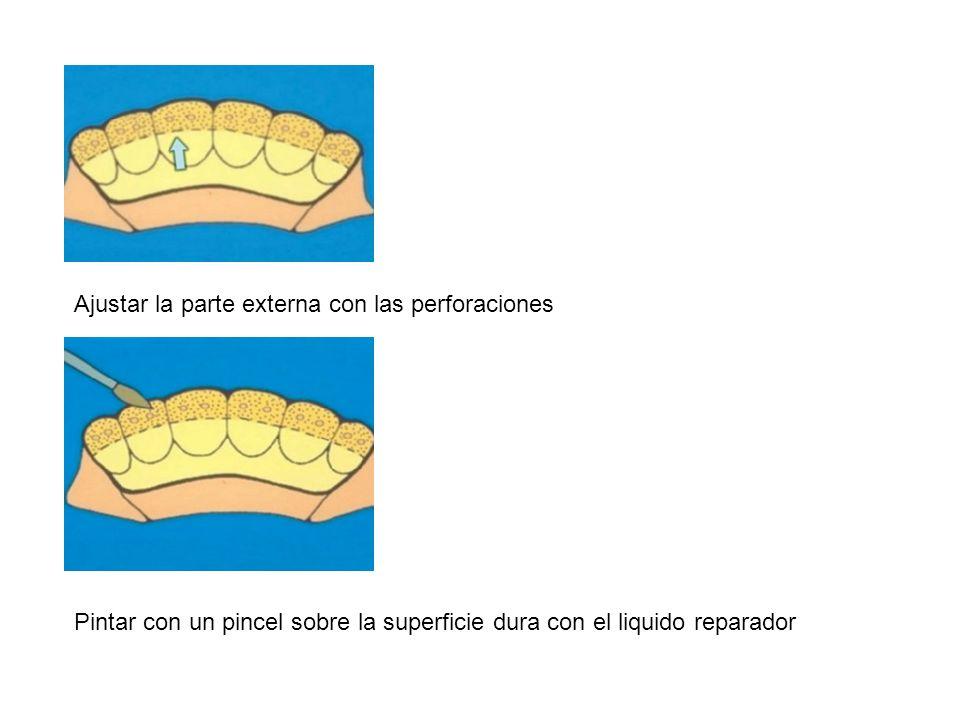 Ajustar la parte externa con las perforaciones