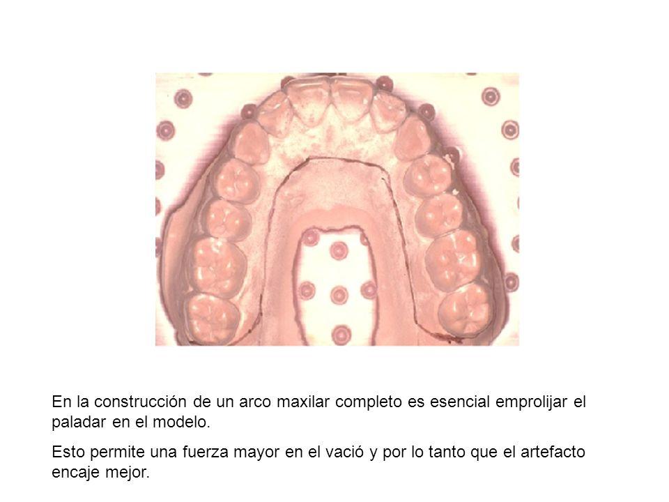 En la construcción de un arco maxilar completo es esencial emprolijar el paladar en el modelo.