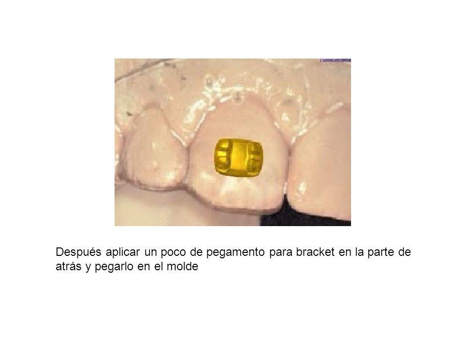 Después aplicar un poco de pegamento para bracket en la parte de atrás y pegarlo en el molde