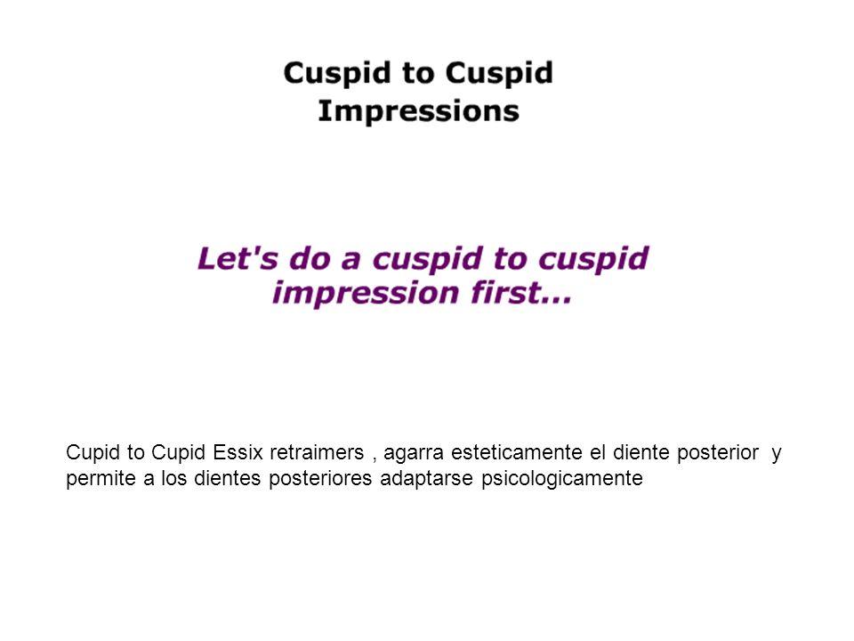 Cupid to Cupid Essix retraimers , agarra esteticamente el diente posterior y permite a los dientes posteriores adaptarse psicologicamente