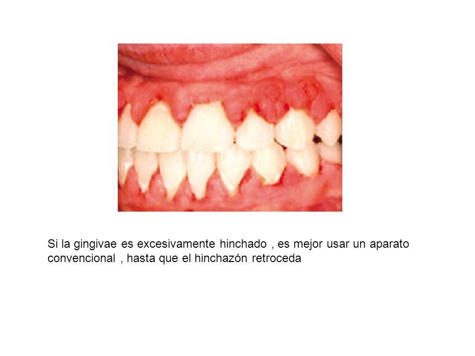 Si la gingivae es excesivamente hinchado , es mejor usar un aparato convencional , hasta que el hinchazón retroceda