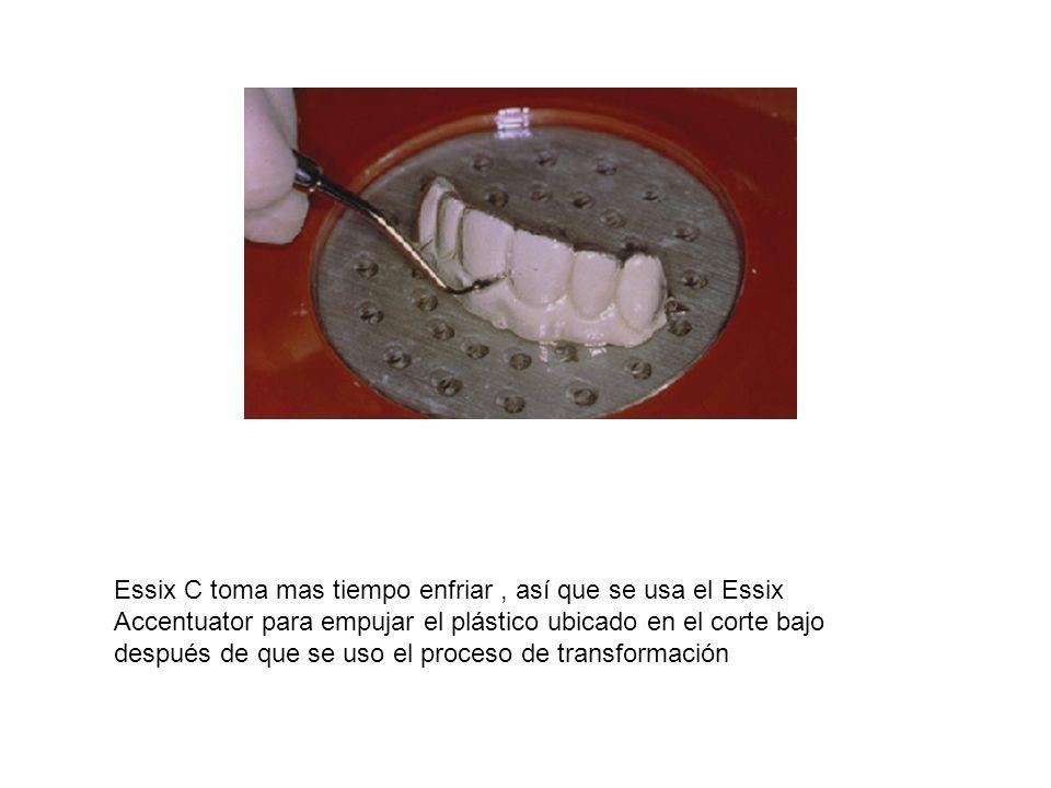 Essix C toma mas tiempo enfriar , así que se usa el Essix Accentuator para empujar el plástico ubicado en el corte bajo después de que se uso el proceso de transformación