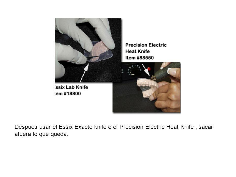 Después usar el Essix Exacto knife o el Precision Electric Heat Knife , sacar afuera lo que queda.