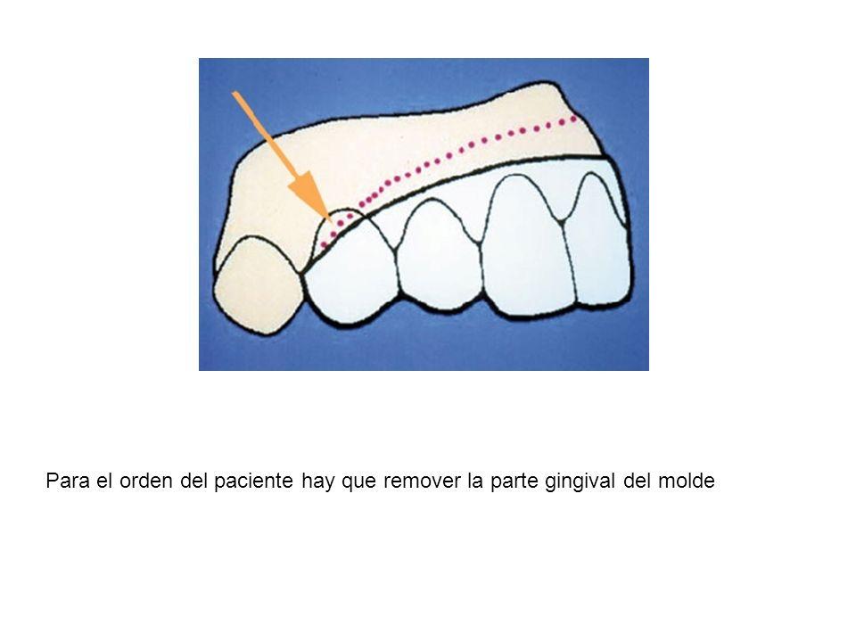 Para el orden del paciente hay que remover la parte gingival del molde