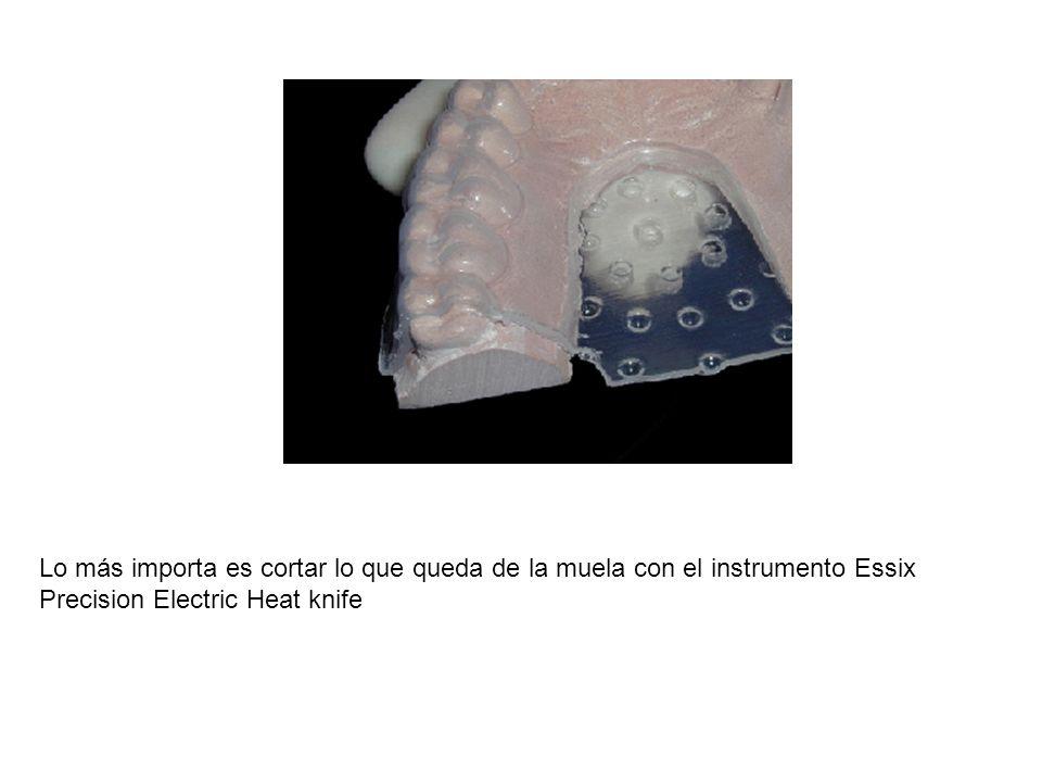 Lo más importa es cortar lo que queda de la muela con el instrumento Essix Precision Electric Heat knife