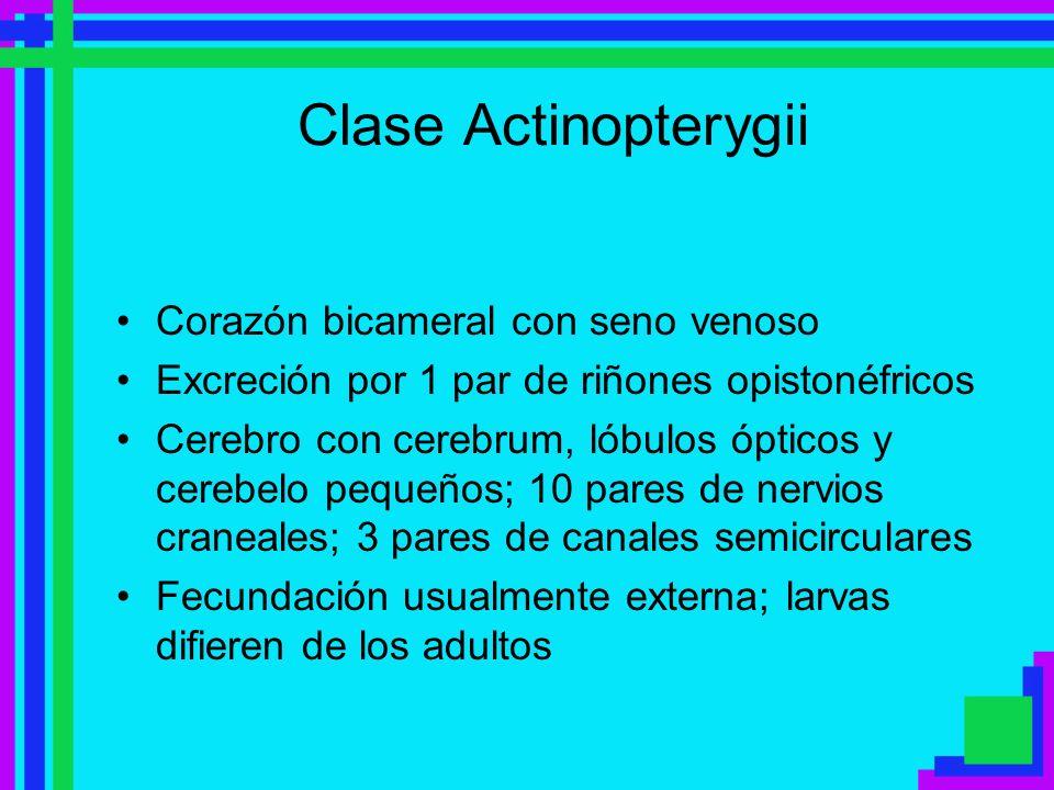Clase Actinopterygii Corazón bicameral con seno venoso