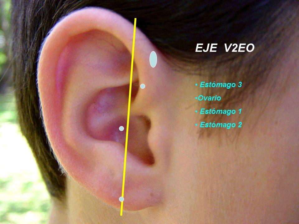 EJE V2EO Estómago 3 Ovario Estómago 1 Estómago 2