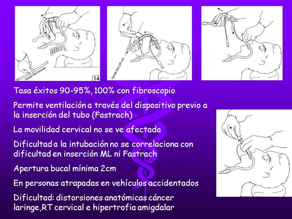 Tasa éxitos 90-95%, 100% con fibroscopio