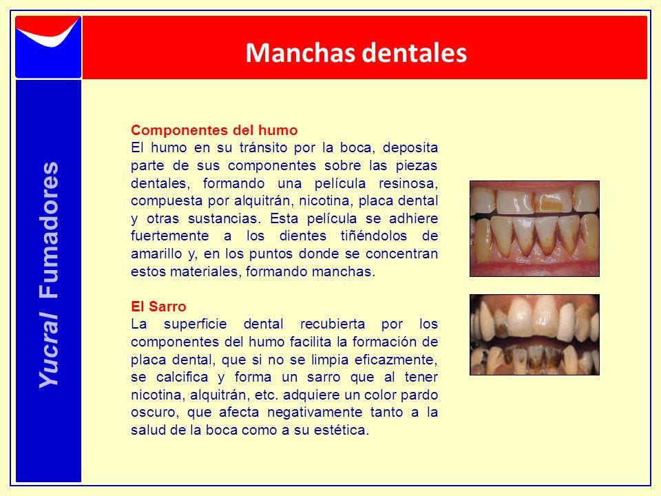 Manchas dentales Yucral Fumadores Componentes del humo