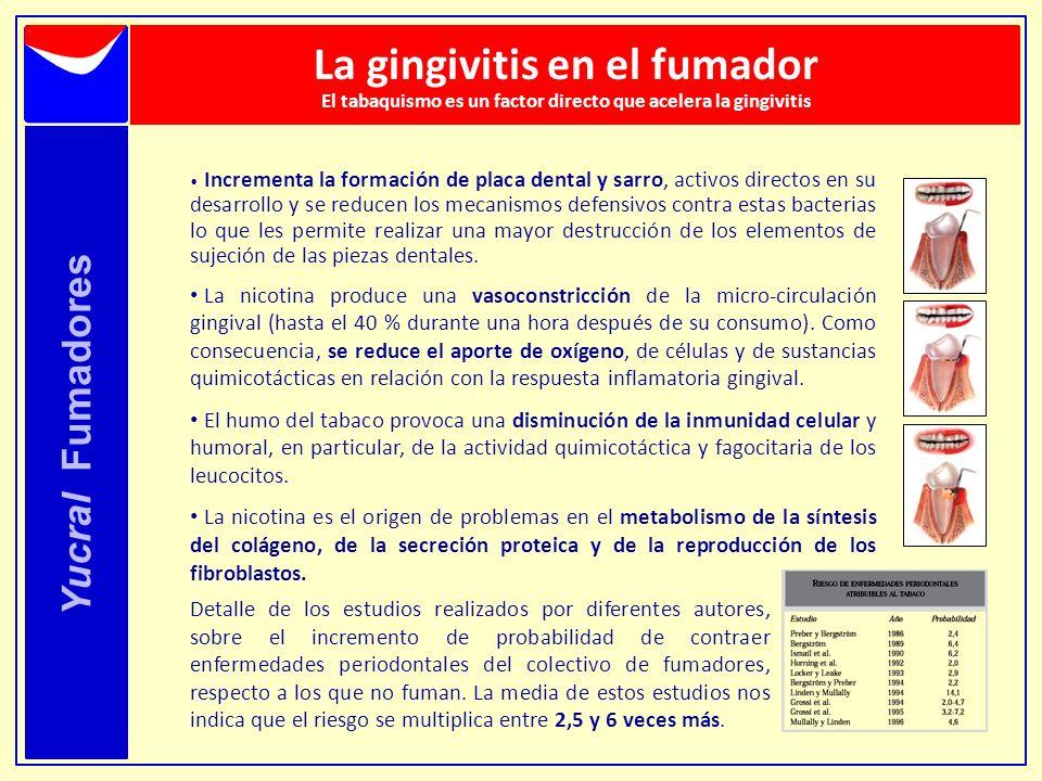 La gingivitis en el fumador