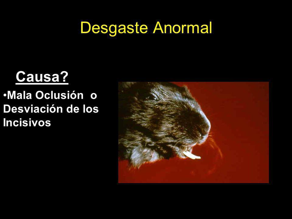 Desgaste Anormal Causa Mala Oclusión o Desviación de los Incisivos