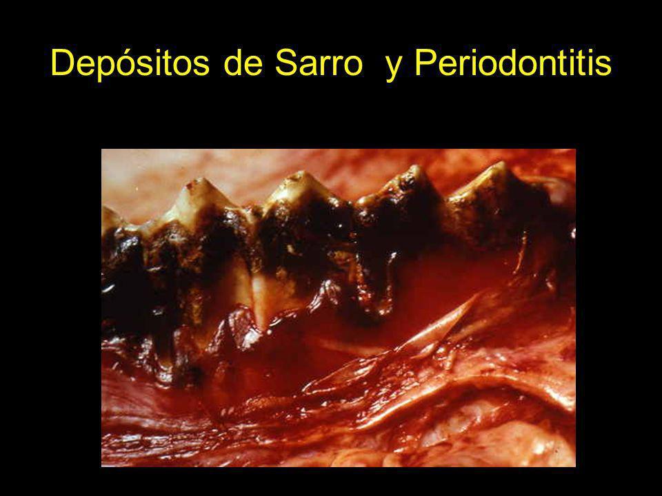 Depósitos de Sarro y Periodontitis