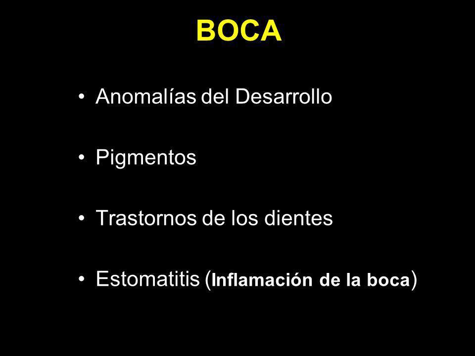 BOCA Anomalías del Desarrollo Pigmentos Trastornos de los dientes