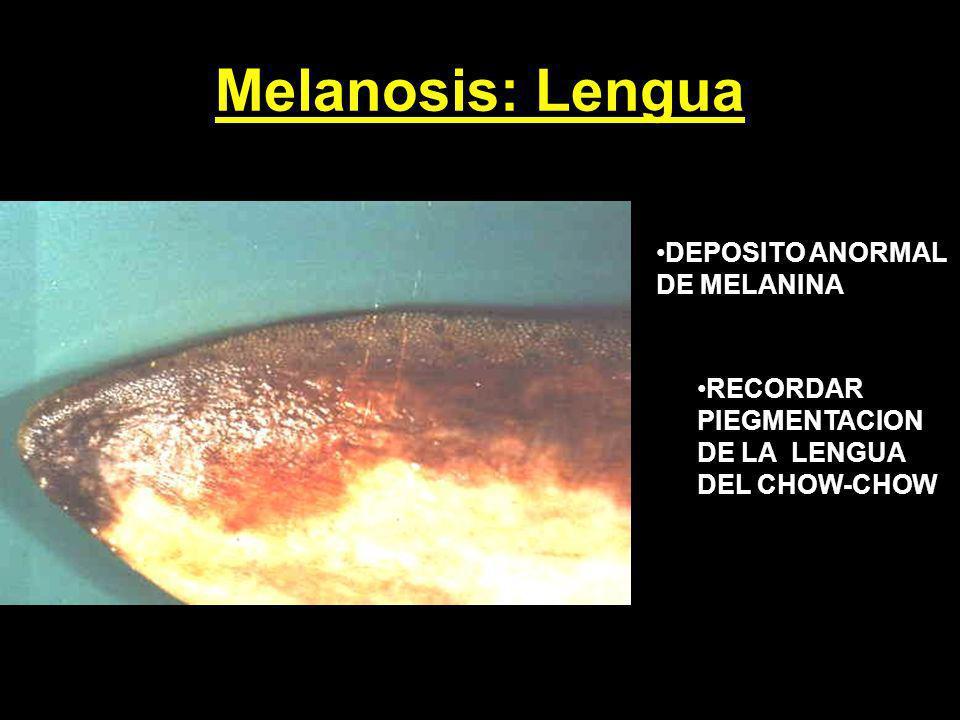 Melanosis: Lengua DEPOSITO ANORMAL DE MELANINA