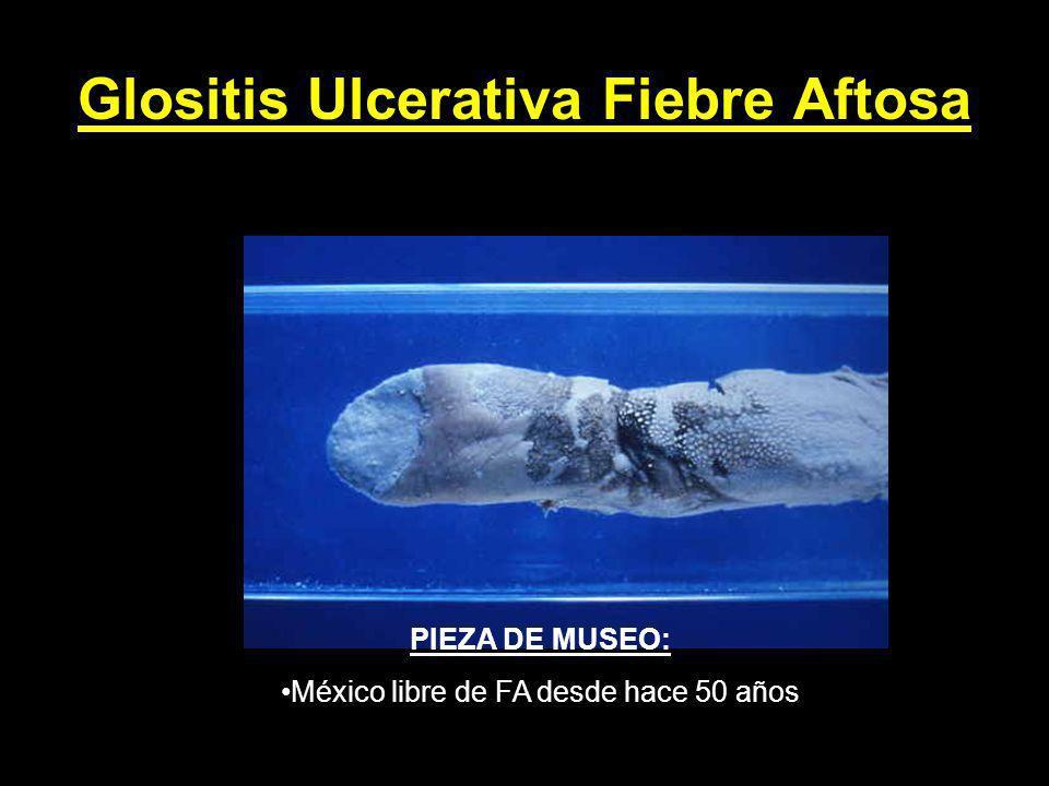 Glositis Ulcerativa Fiebre Aftosa