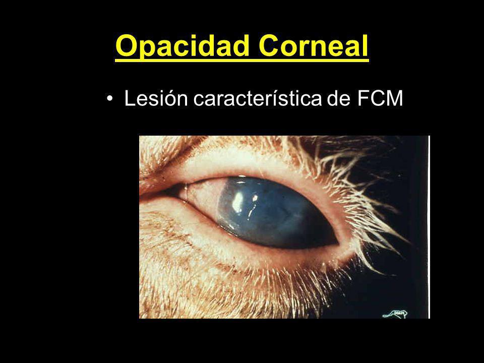 Opacidad Corneal Lesión característica de FCM