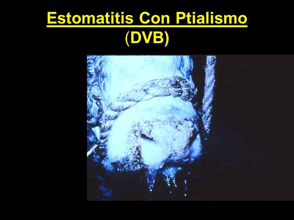 Estomatitis Con Ptialismo (DVB)